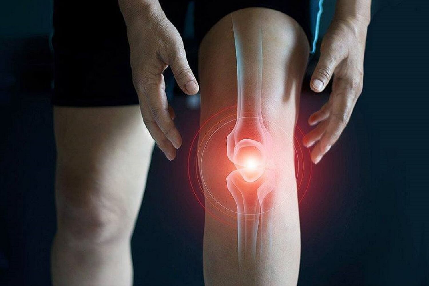 treating-knee-or-hip-osteoarthritis