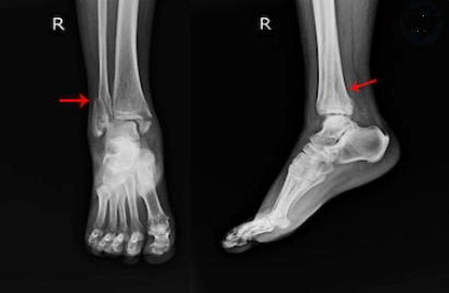 what-is-a-syndesmosis-injury-image