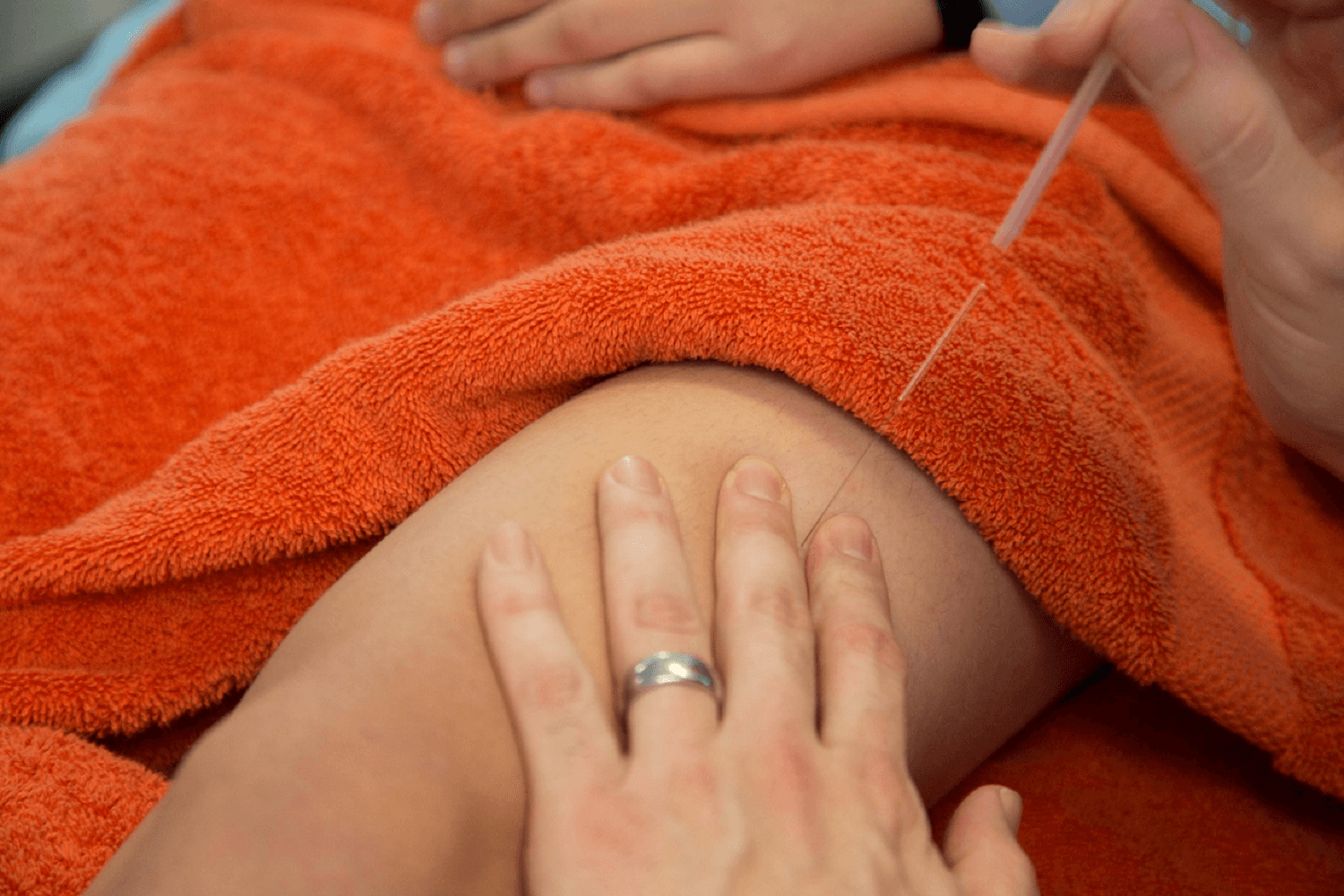 dry-needling-vs-acupuncture