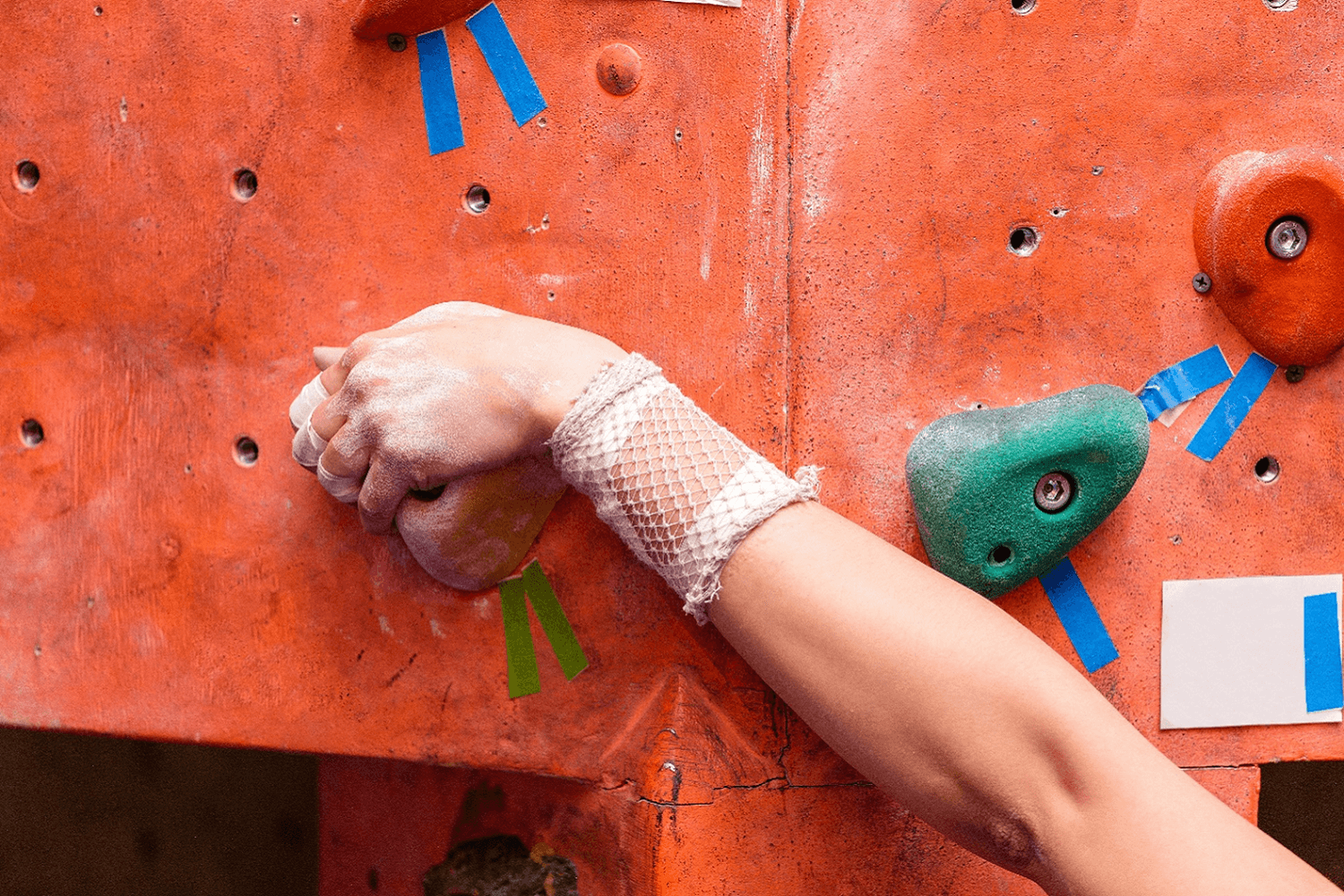 rock-climbing-injuries