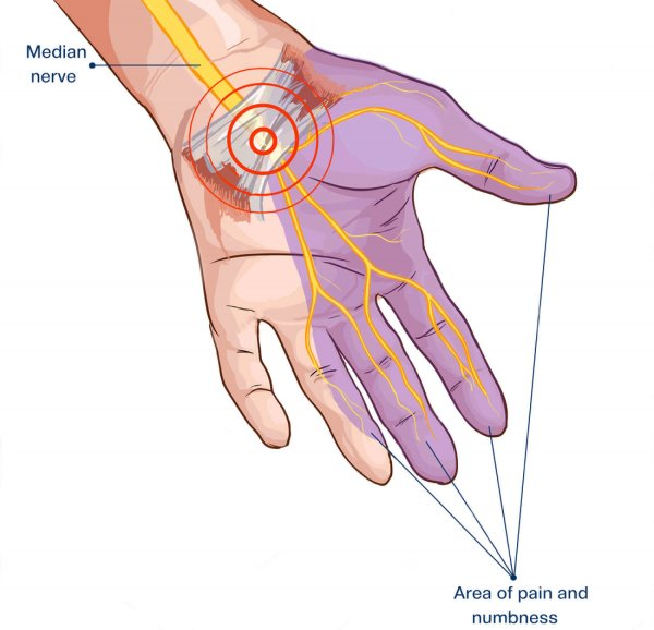 physiotherapy-for-carpal-tunnel-syndrome